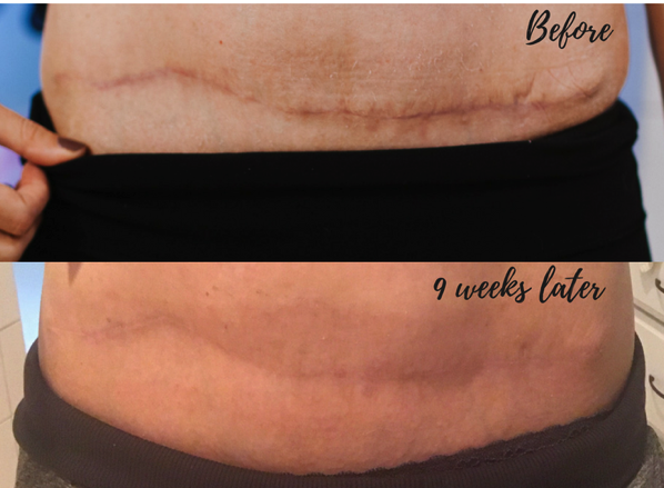 5 1/2 month update with embrace