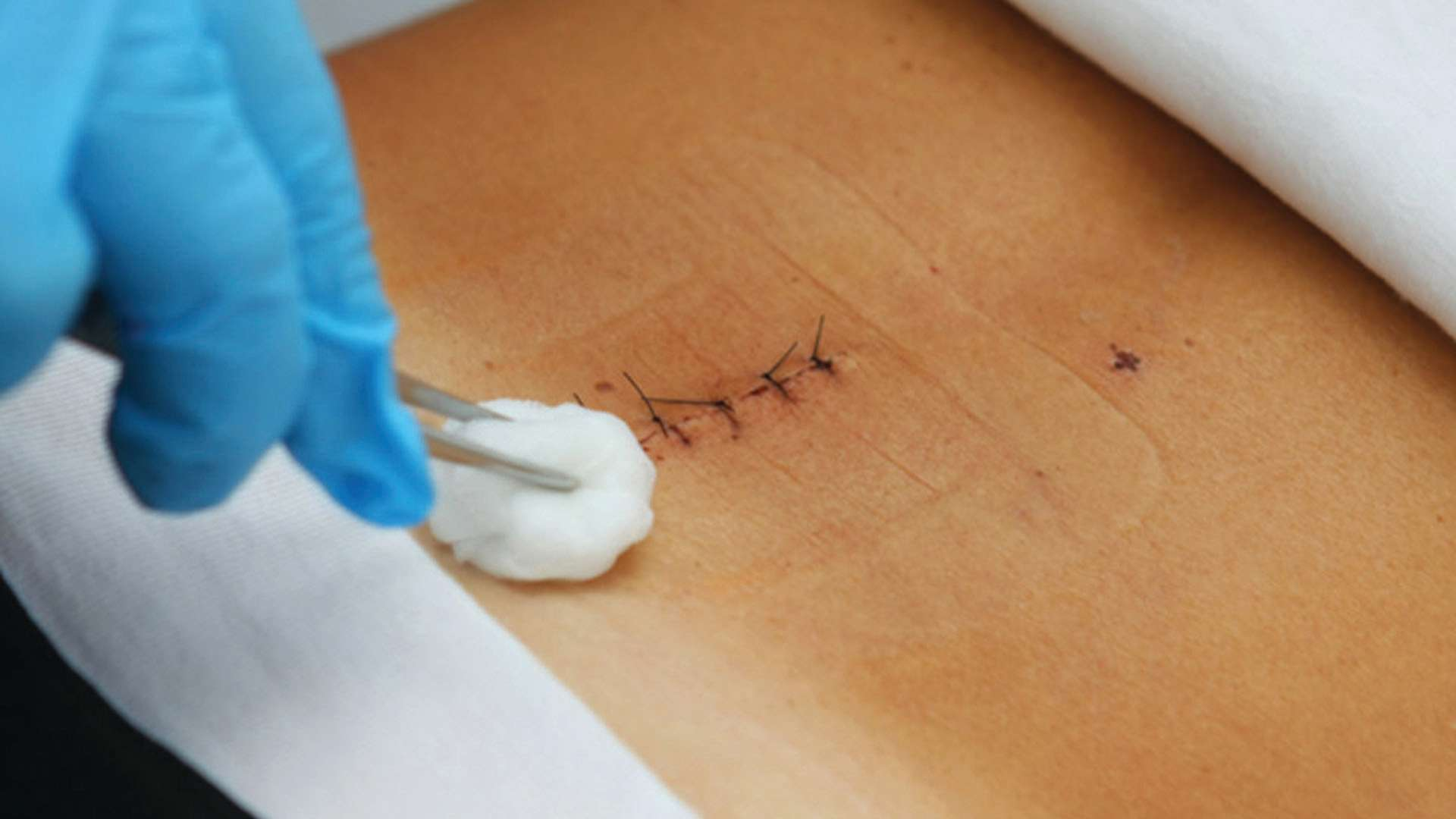 Understanding Scarring: How to Achieve Optimal Results After Surgery